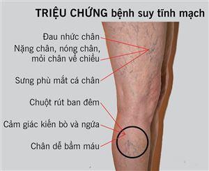 Bệnh giãn tĩnh mạch chân đang ngày càng trẻ hóa