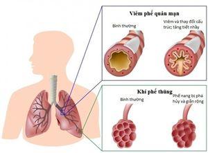Ứng dụng tế bào gốc trong điều trị bệnh phổi tắc nghẽn mạn tính